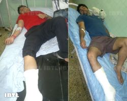 Example of police brutalities, Ankit and Harvesh