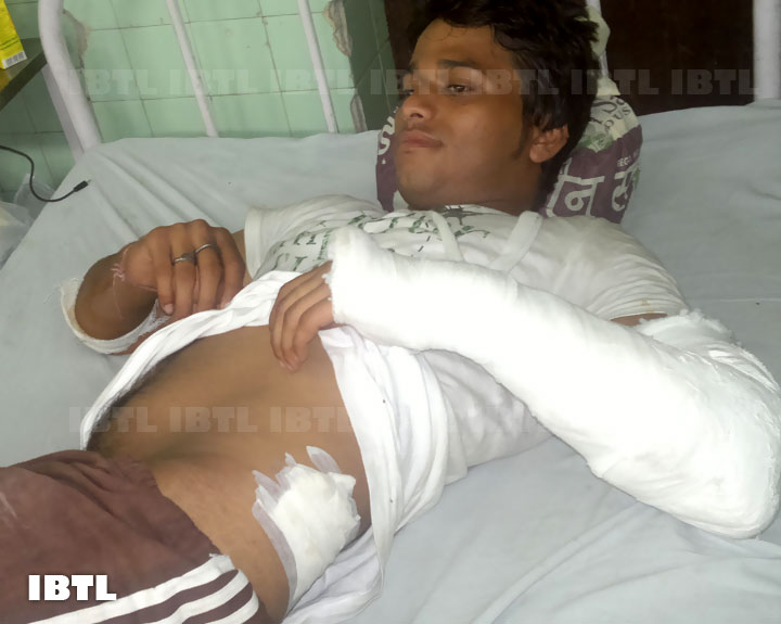 Ex DUSU Joint Secretary Deepak Bansal showing his injuries