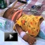 Baby neha afreen, injuries, Battered, Trauma, baby falak