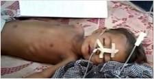 Encephalitis, Borne Viral, Gorakhpur, HOD Paediatrics, BRD Medical College